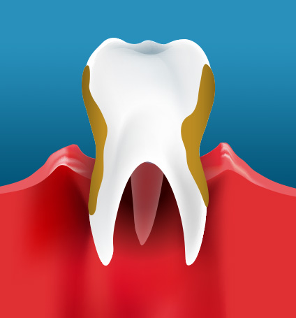 BeautifulSmiles-Periodontal Disease