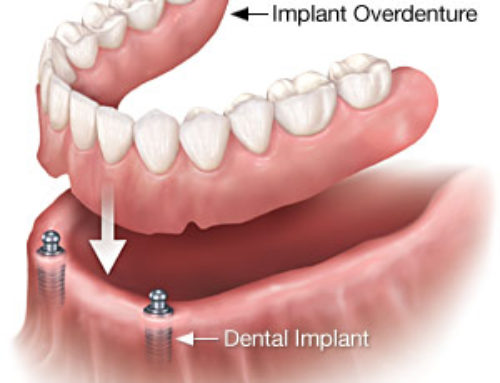 Implants Over Dentures
