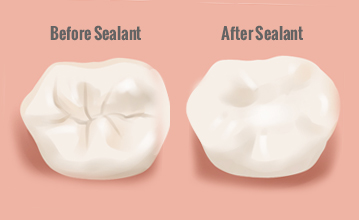 Beautiful Smiles of Long Island- Dental Sealant