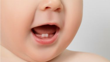Beautiful Smiles of Long Island- Infant Dental Care