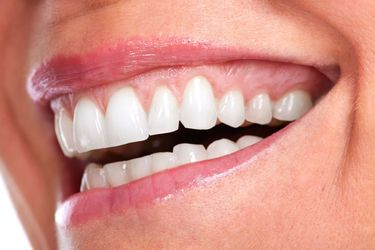 Beautiful Smiles of Long Island- Teeth Whitening