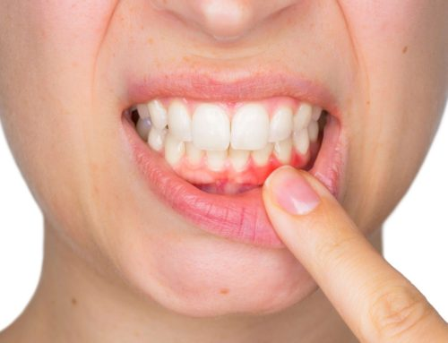 Gingivitis vs. Periodontitis: The Importance of Gum Health